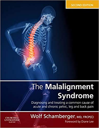 Mikä on epäsymmetria oireyhtymä eli Malalignment syndrome?