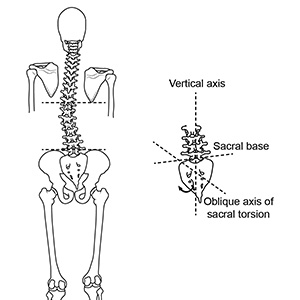Correcting functional scoliosis